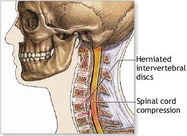 spinal canal stenosis exercise pdf