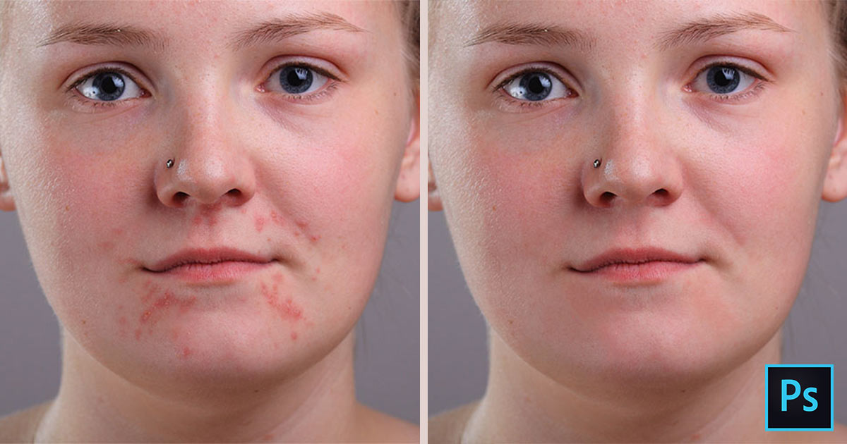 how to get rid of masturabation pimples pdf